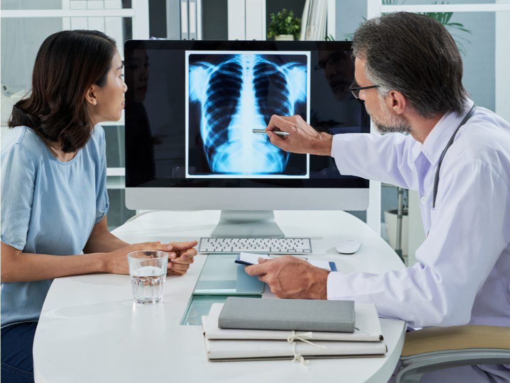 cancer screening lung
