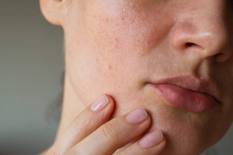 Pores on the skin of the face