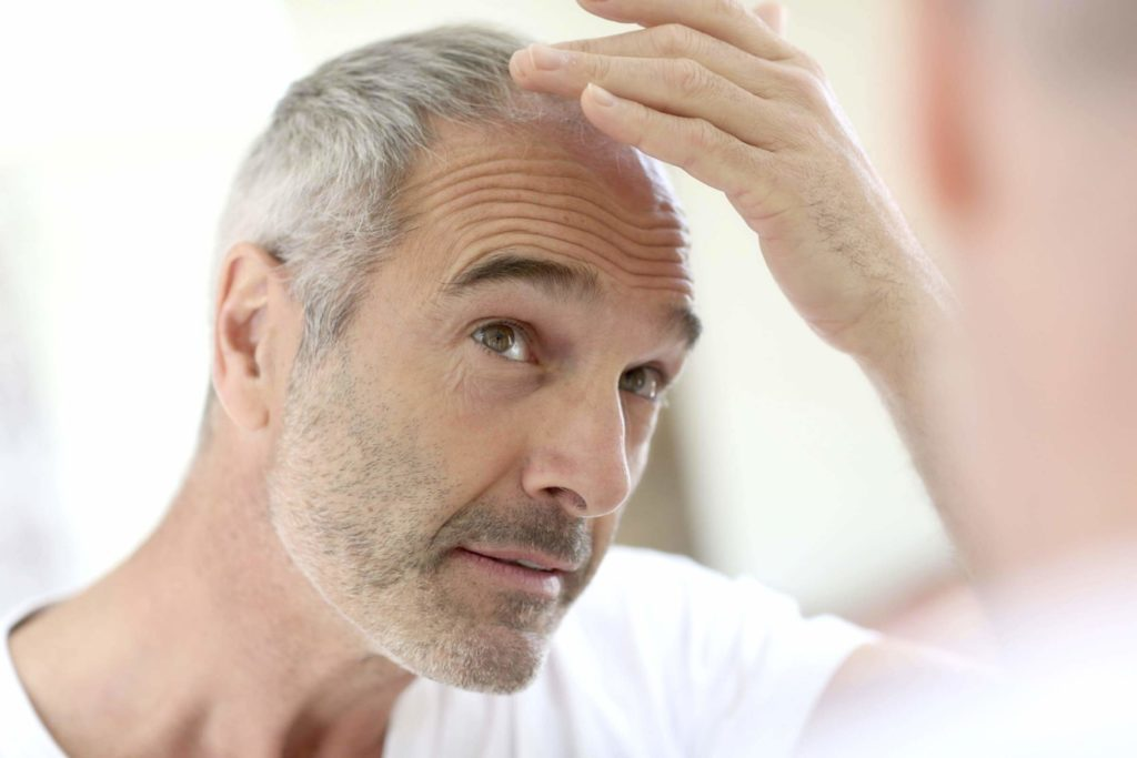 Middle-aged man with thinning hair