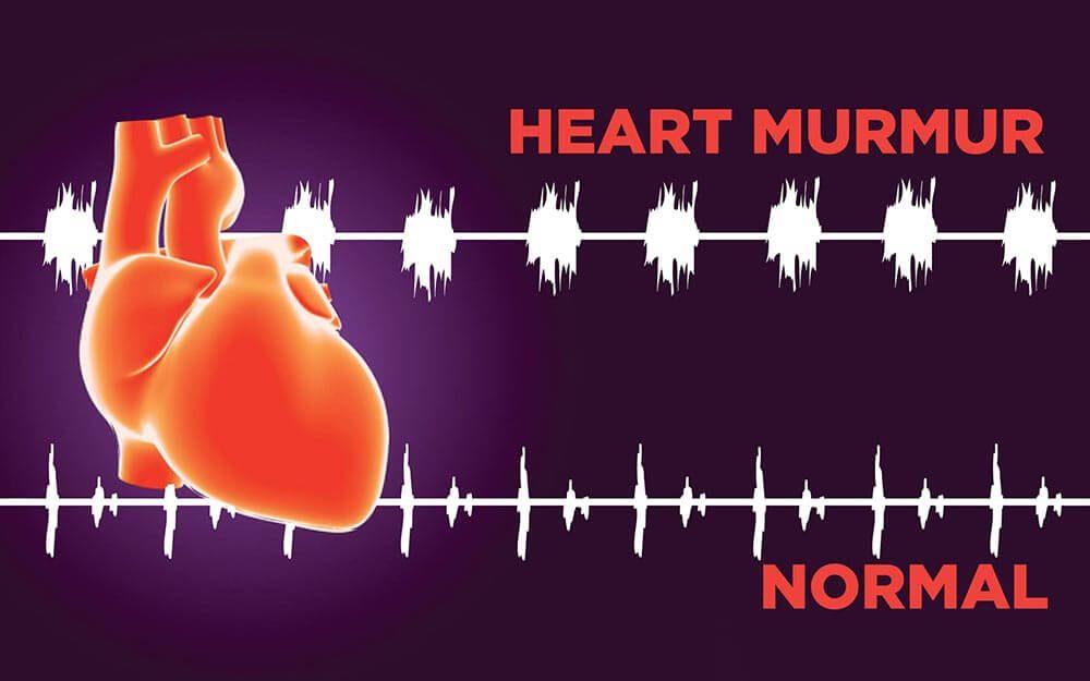 Heart and cardiac rhythms