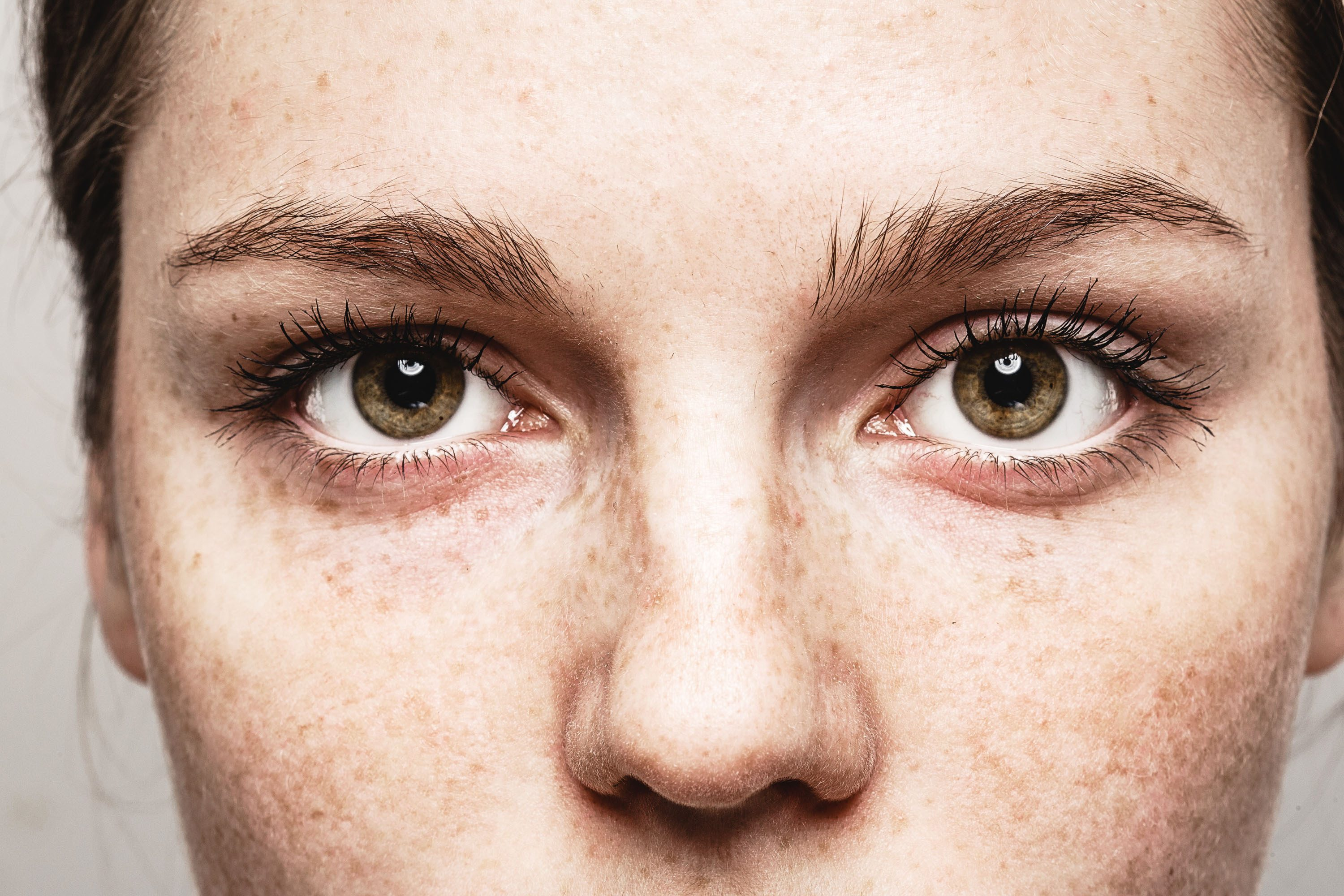 Close-up of freckles and eyes of woman