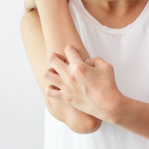 Woman scratching itch