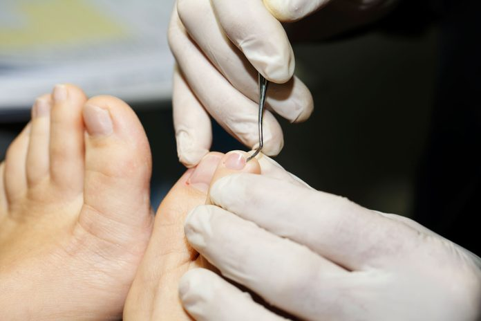 close up of person grooming another person's toenails