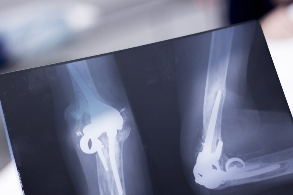 Othopedics and Traumatology surgical implant arm and elbow xray test scan results showing titanium metal plate and screws.