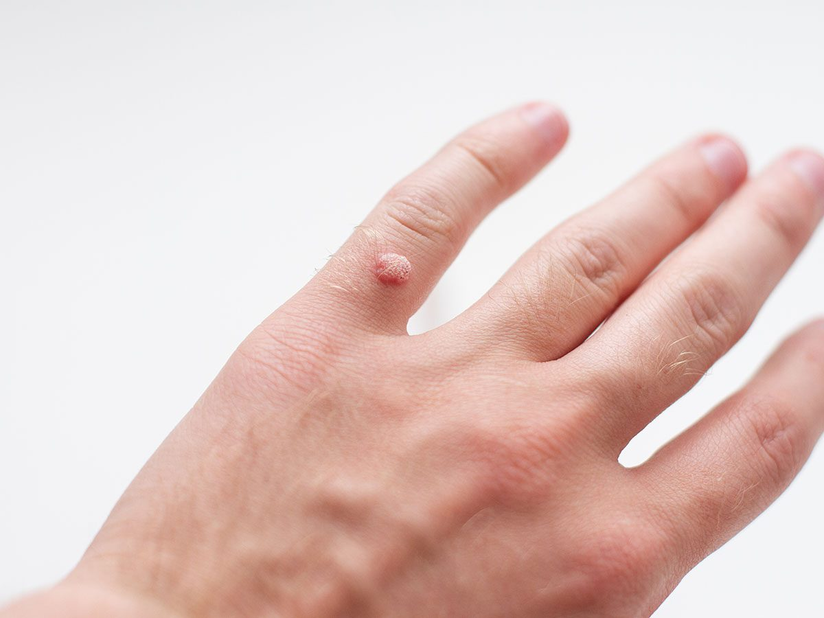 Hand with a wart.