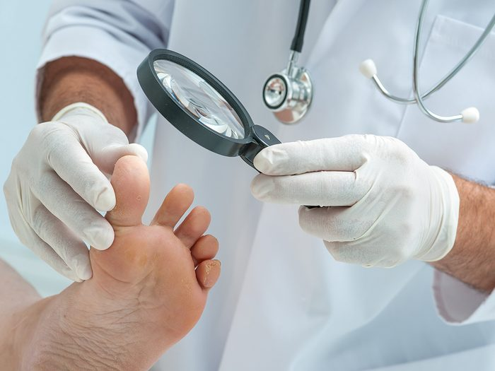 Foot symptoms - Doctor dermatologist examines the foot on the presence of athlete's foot