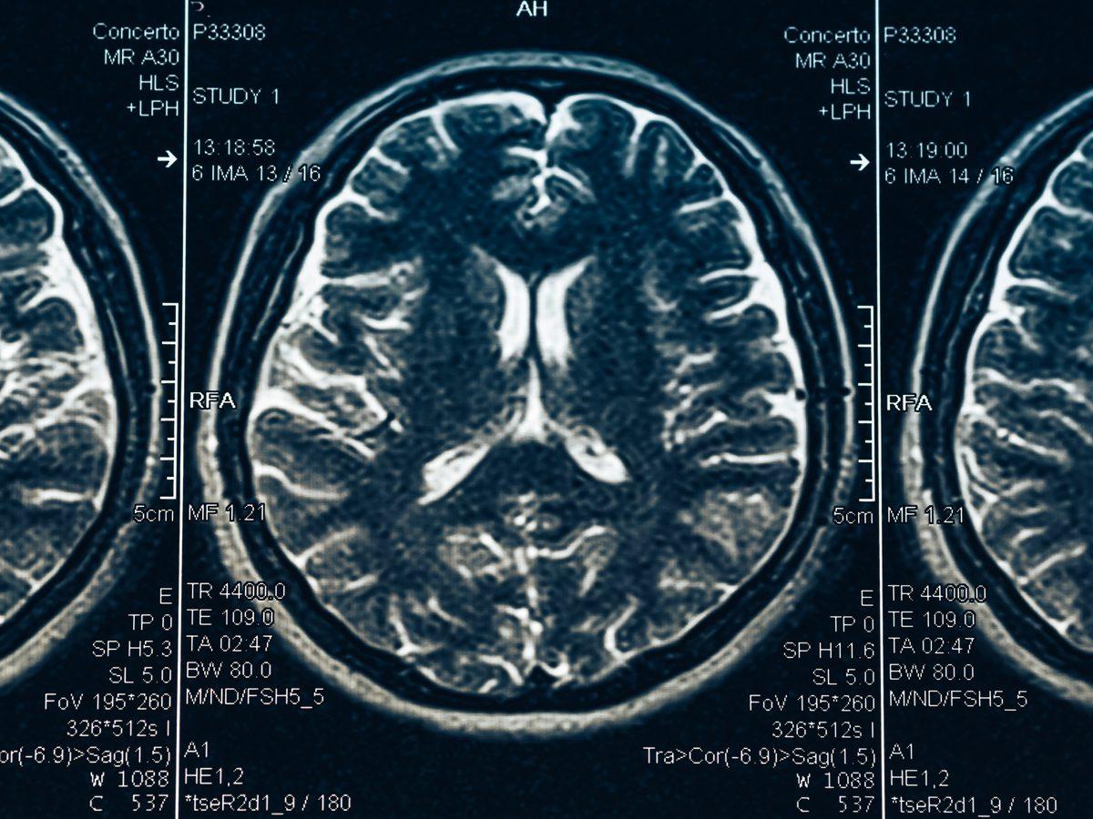 CSF leak - MRI of brain