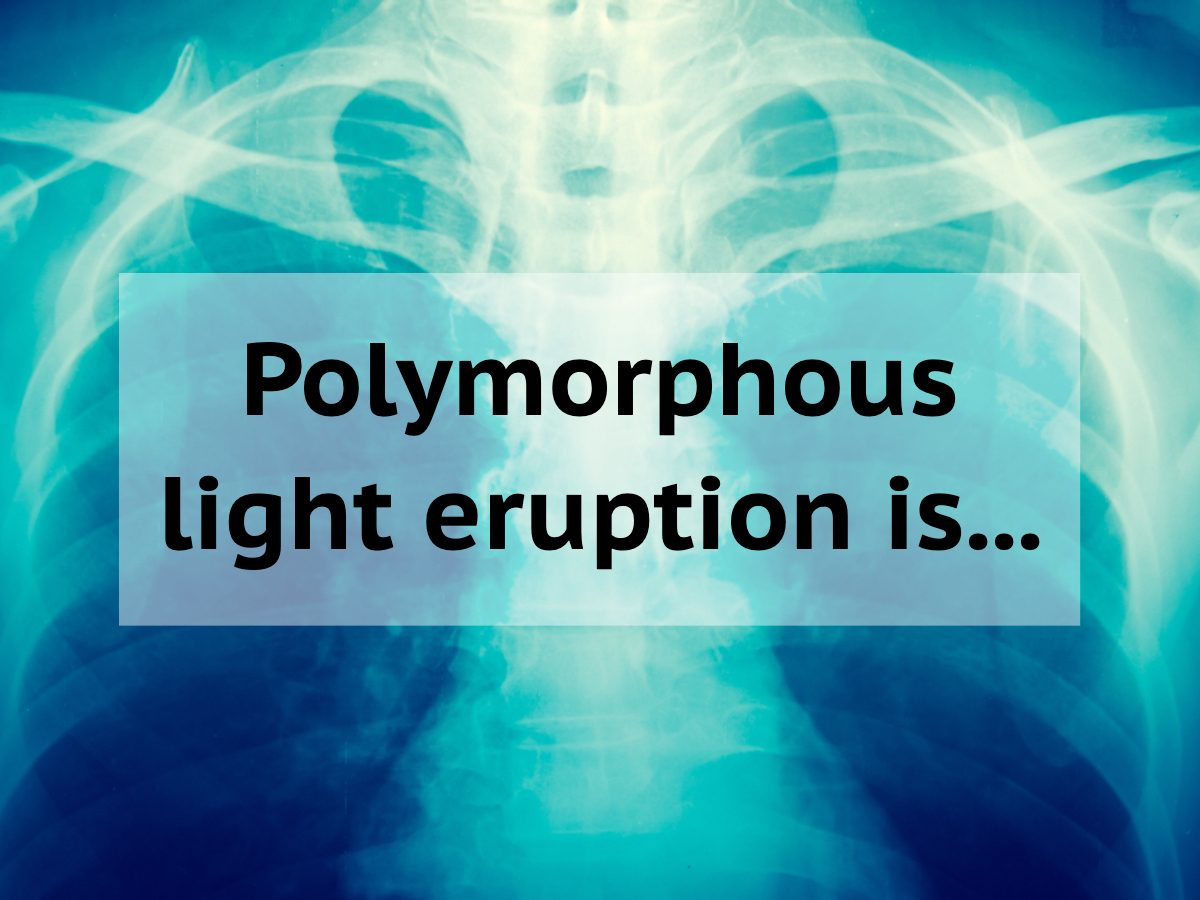 Medical trivia questions - polymorphous light eruption