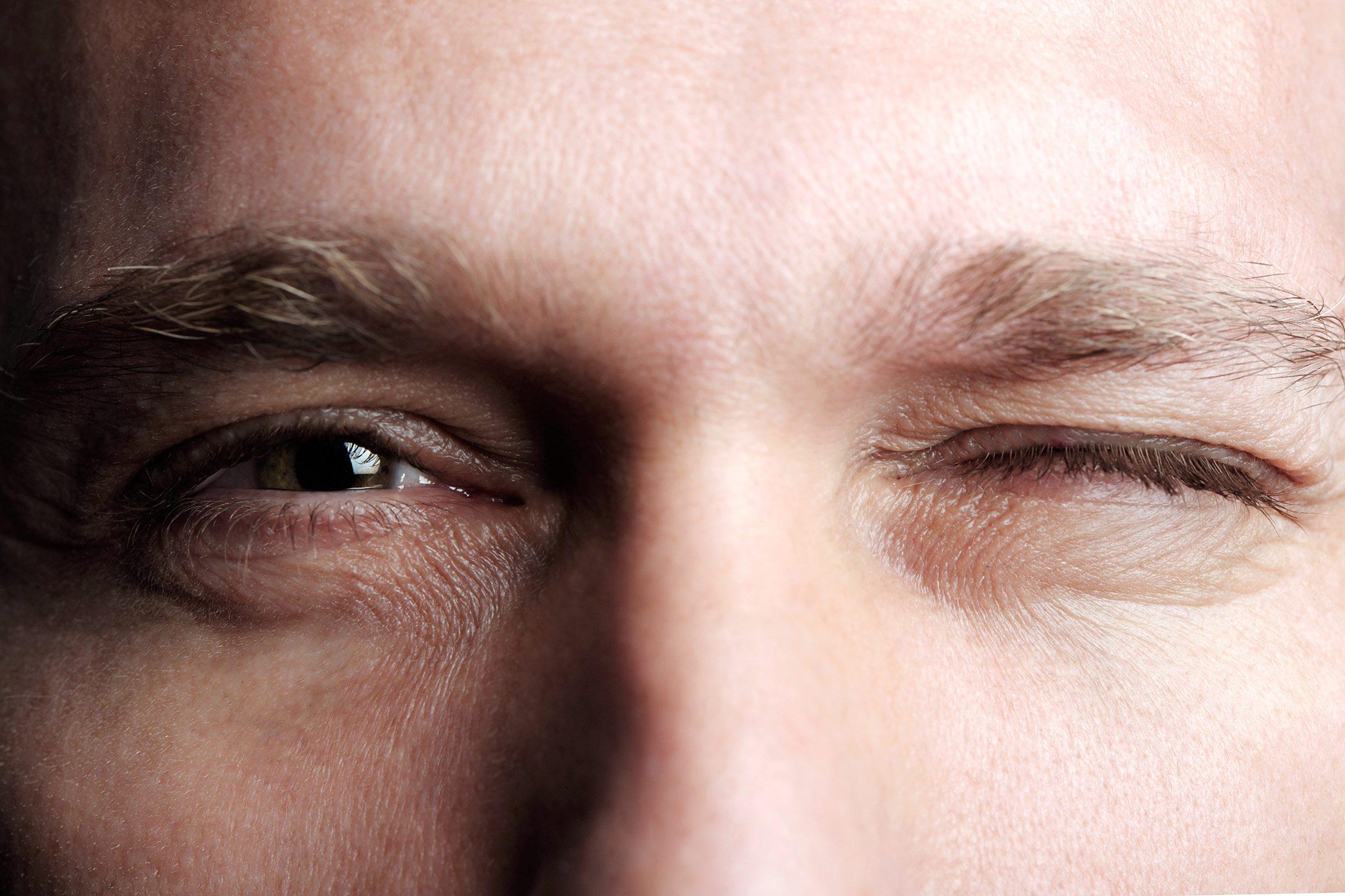 concussion symptoms man eyes pupils