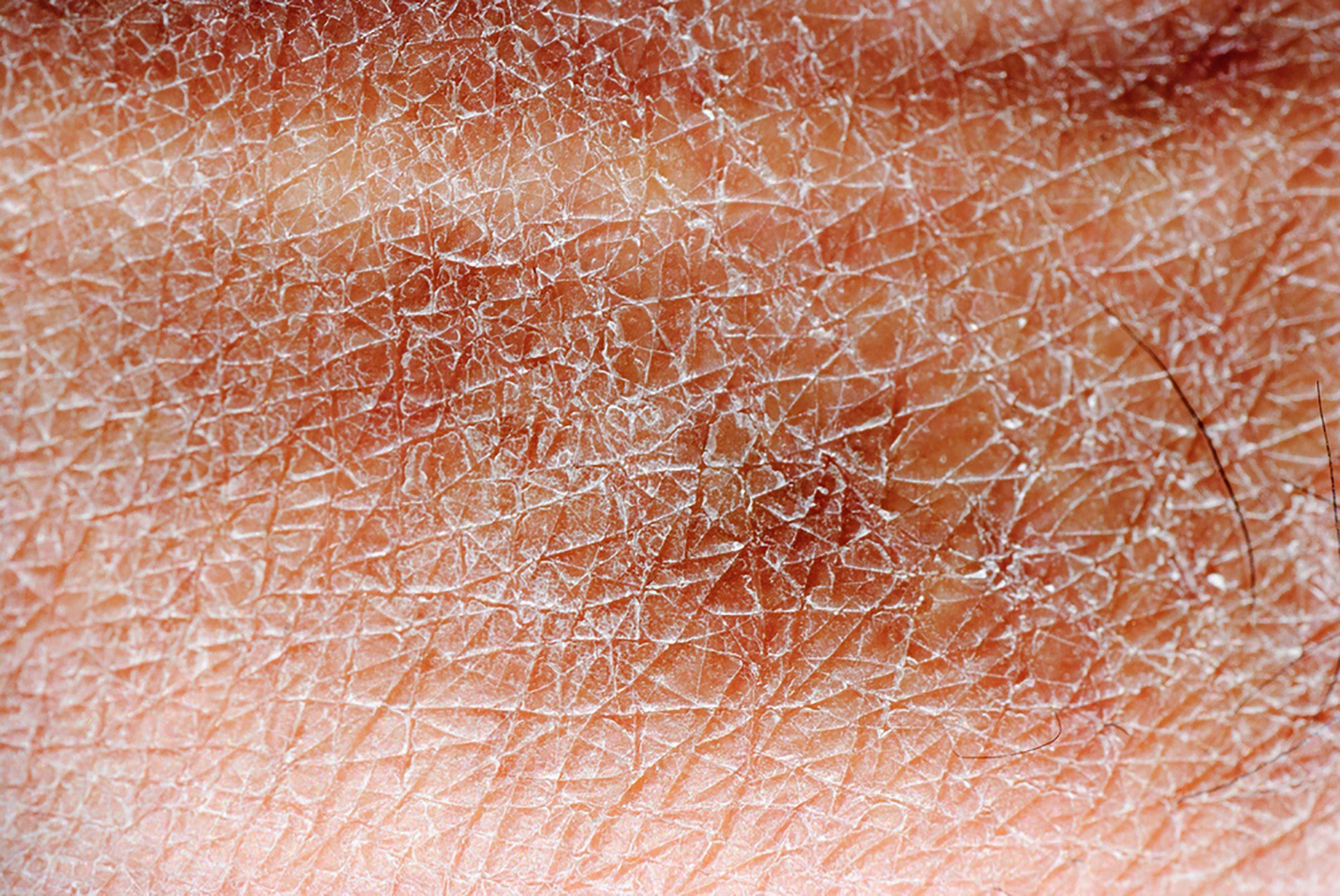 Dry skin