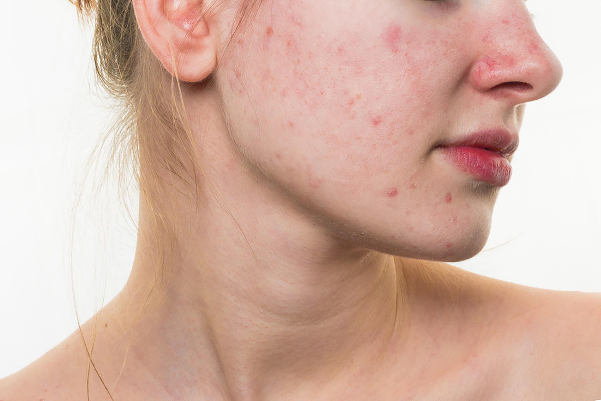 Woman with acne on her face