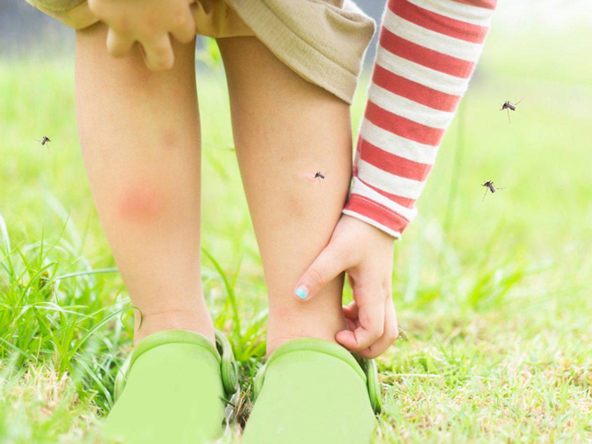 Mosquito bite allergy - girl brushing mosquitoes off leg