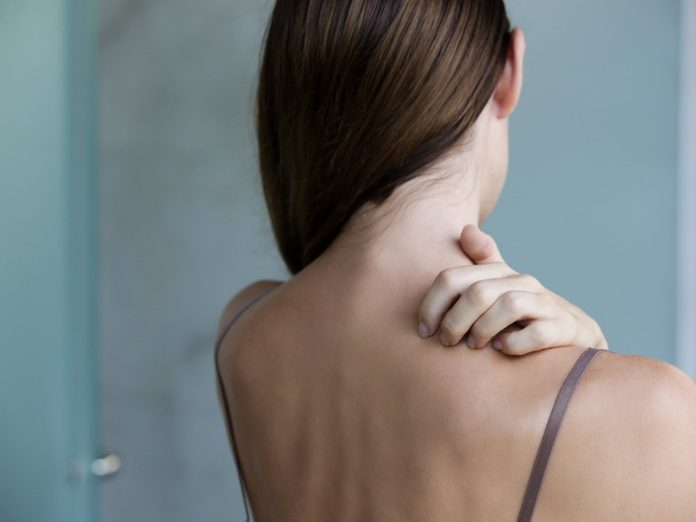 How to Tell the Difference Between Psoriasis, Rosacea, and Eczema - Close up view of woman scratching her neck