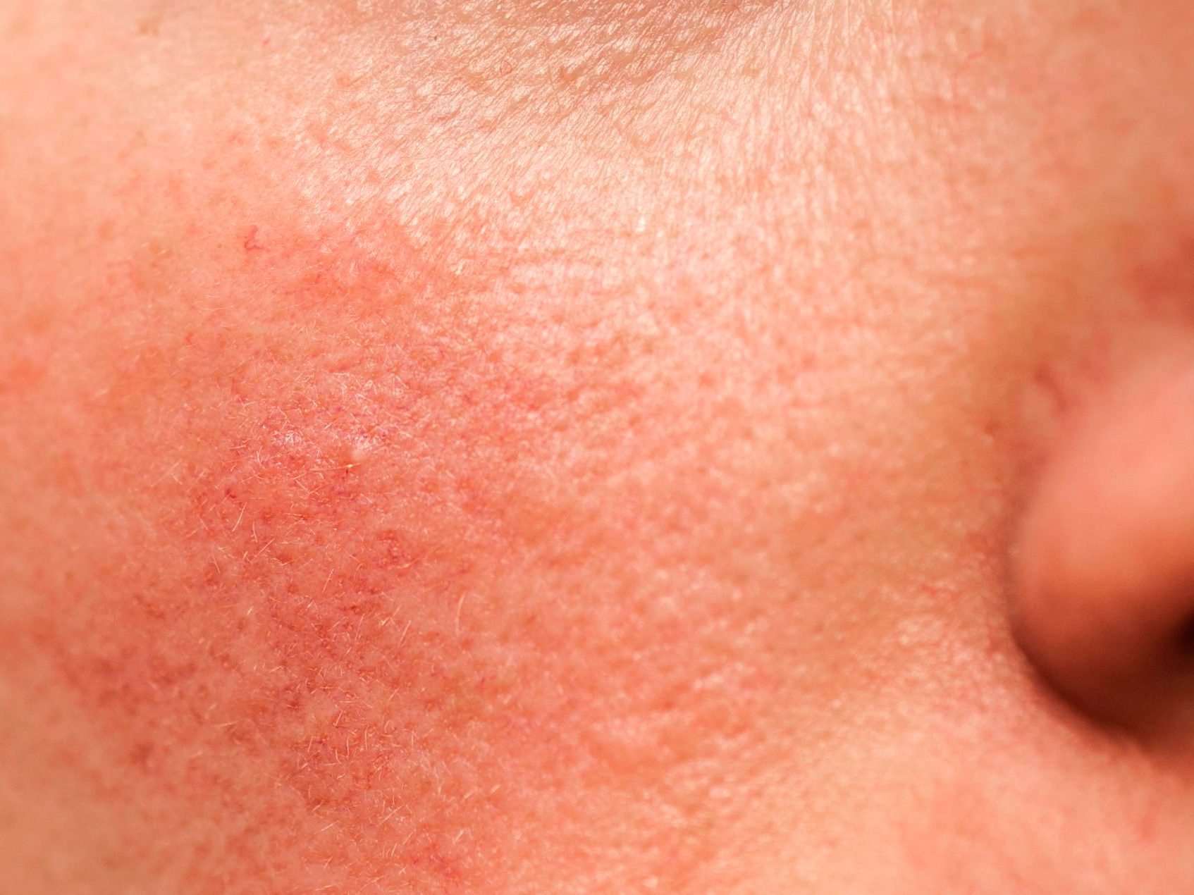 How to Tell the Difference Between Psoriasis, Rosacea, and Eczema - rosacea on face