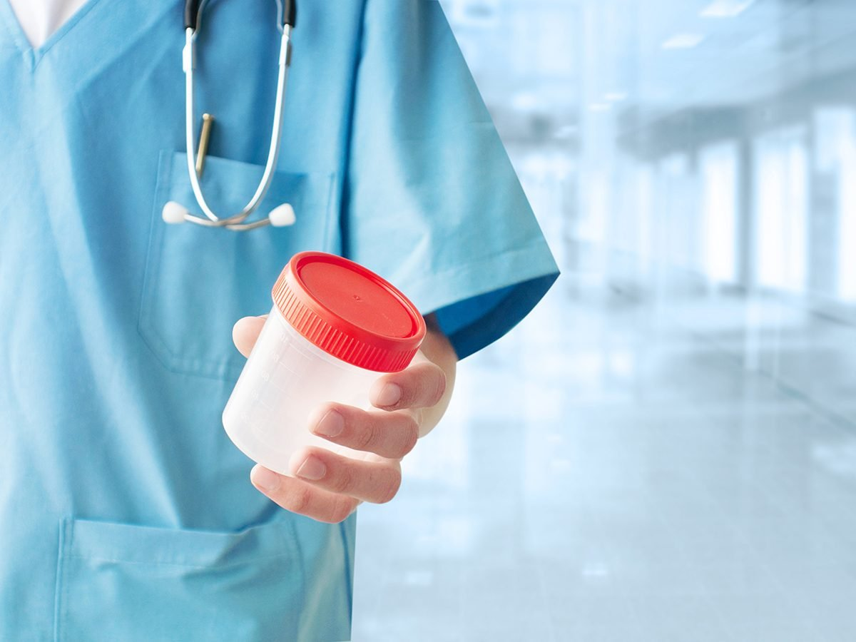 Drinking eight glasses of water a day - doctor holding urine container