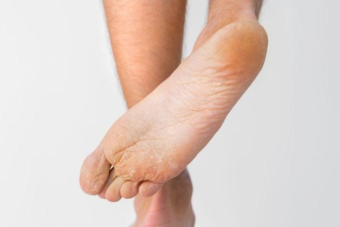 Foot symptoms - Dry flaky feet